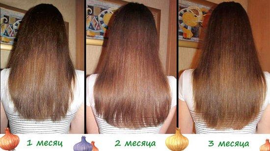 Маски для волос из лука