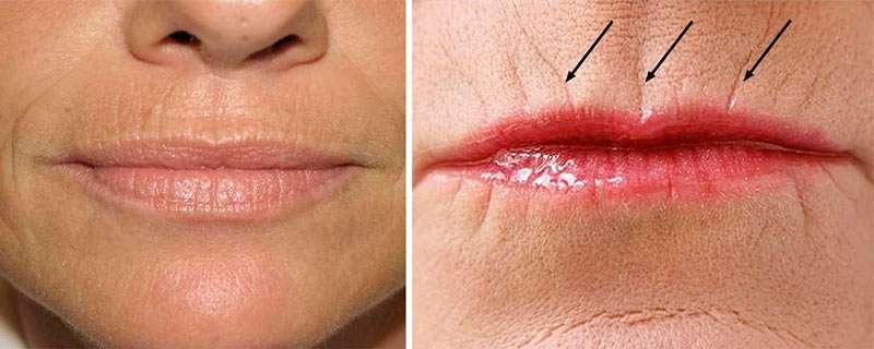 Как убрать морщины над верхней губой? Кисетные морщины над верхней губой – коррекция