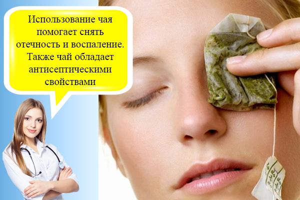 Малярные мешки под глазами: причины и как избавиться