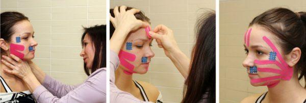 Как быстро подтянуть кожу лица