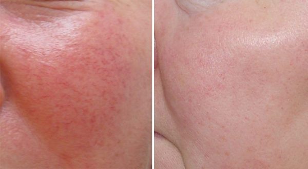 Как избавиться от купероза на лице