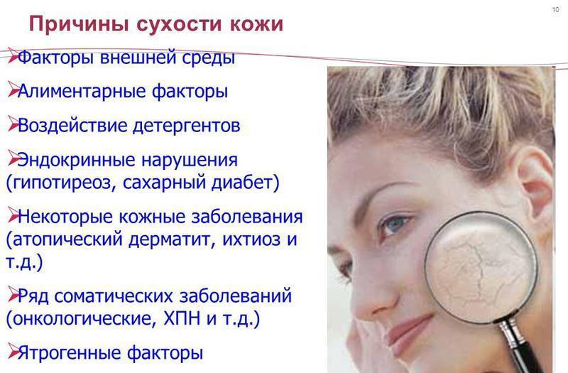 Сухая кожа лица: причины, что делать