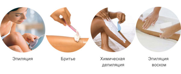 Как удалить нежелательные волосы на теле