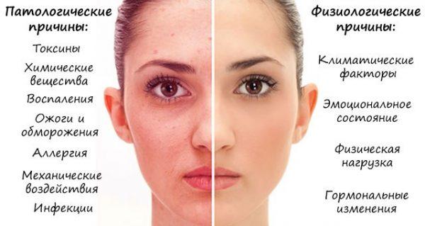 Шелушение кожи лица: какой крем выбрать