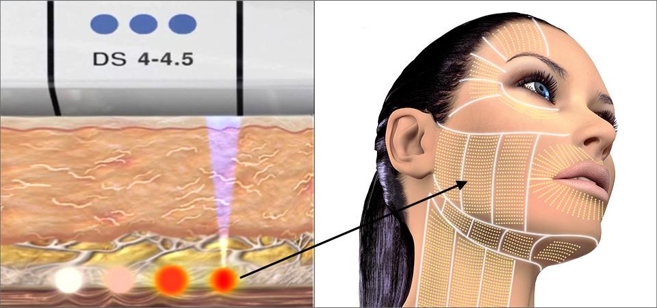 Что такое ультразвуковой лифтинг лица