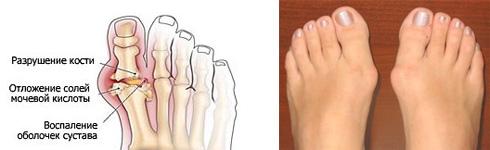 Шишка на ноге возле большого пальца: как избавиться
