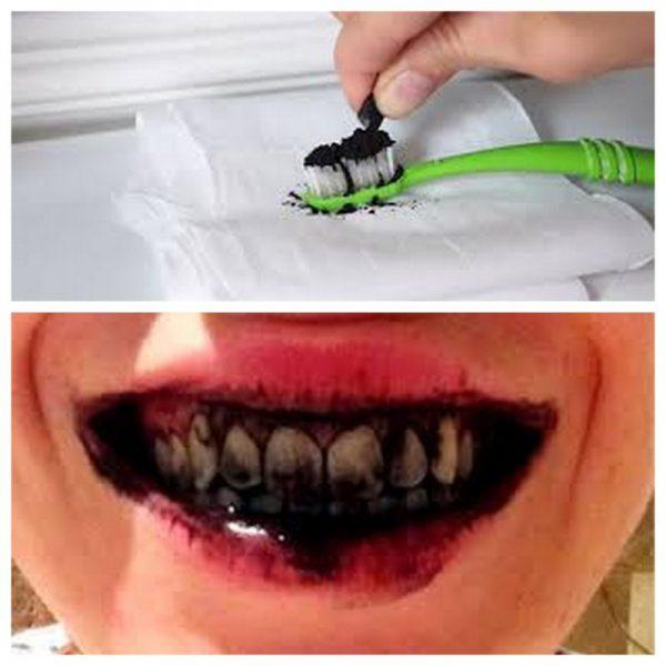 Как избавиться от зубного камня в домашних условиях