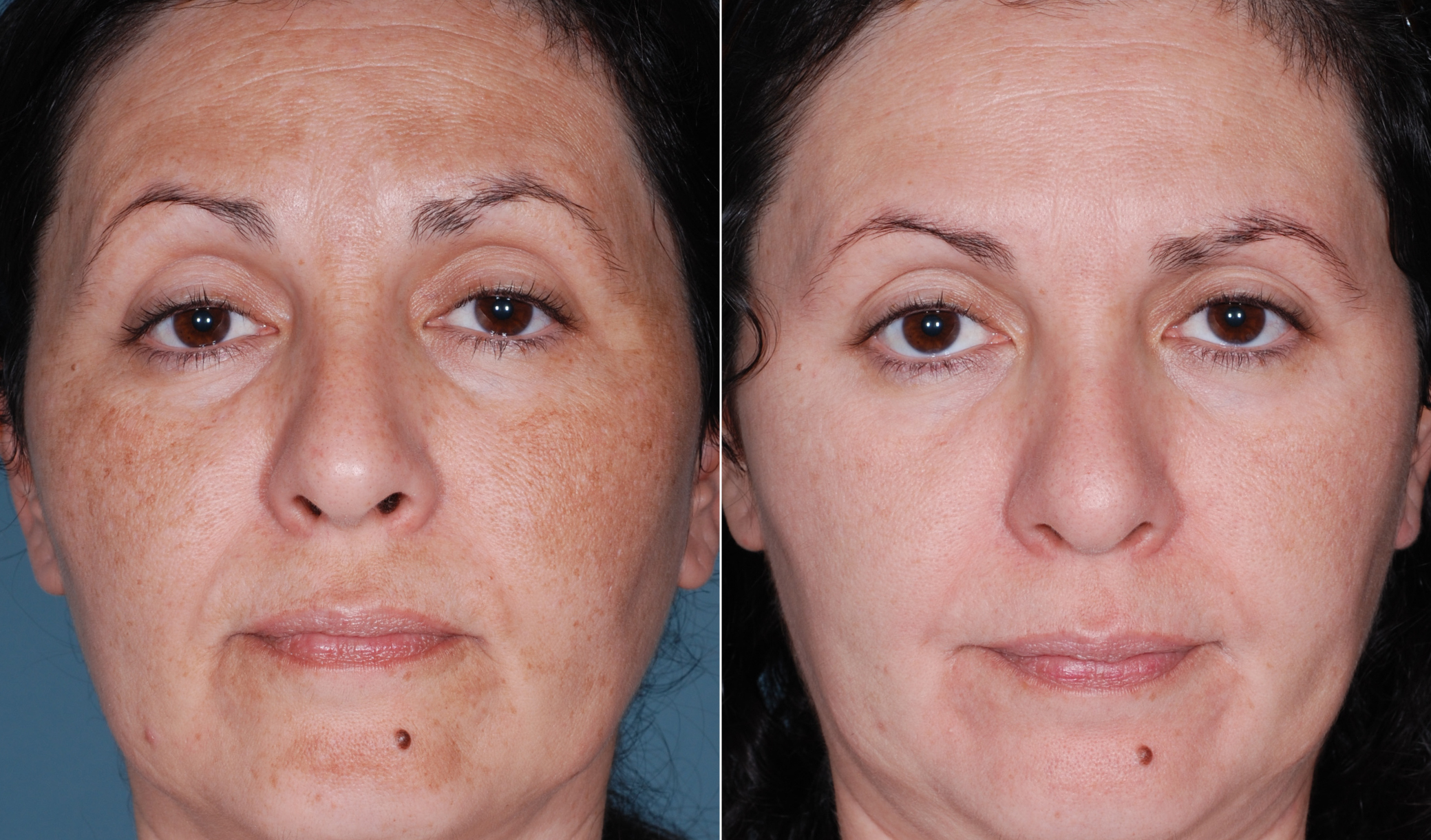 Дарсонваль для омоложения кожи лица