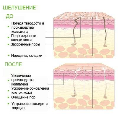 Карбоновый пилинг для омоложения лица: польза и вред