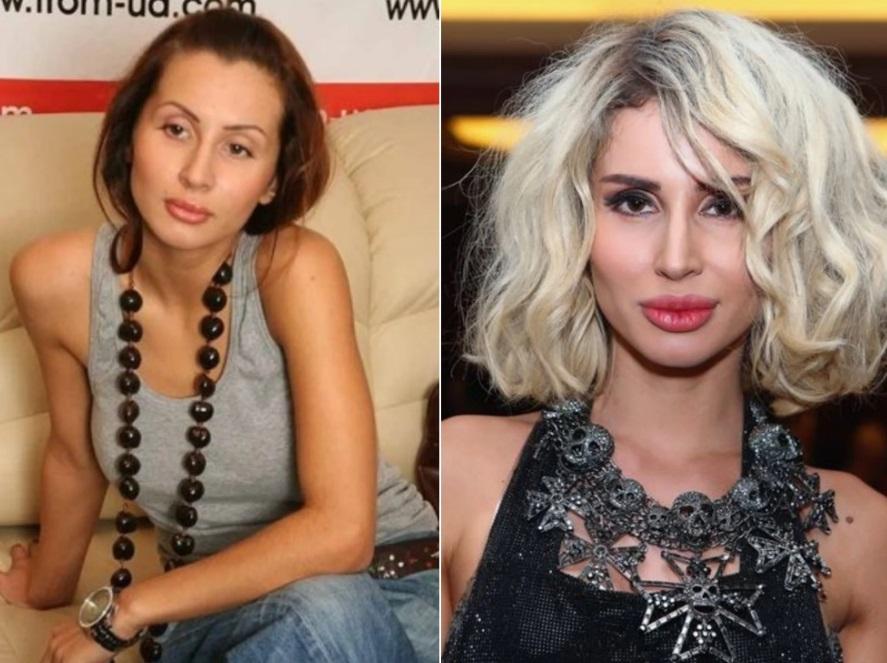 Светлана Лобода до и после пластики