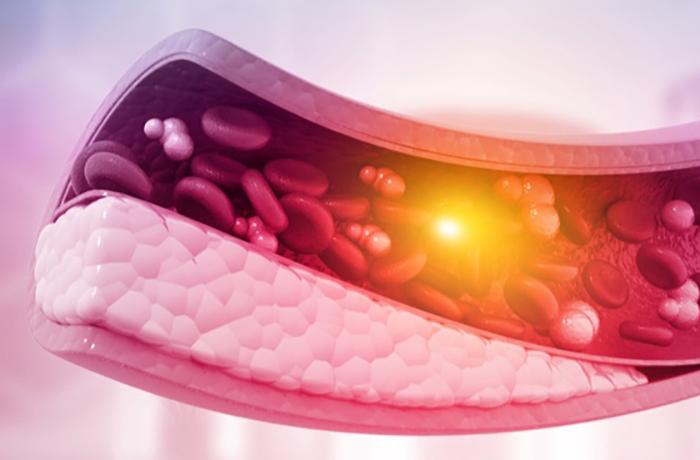 10 продуктов, которые разжижают кровь лучше аспирина
