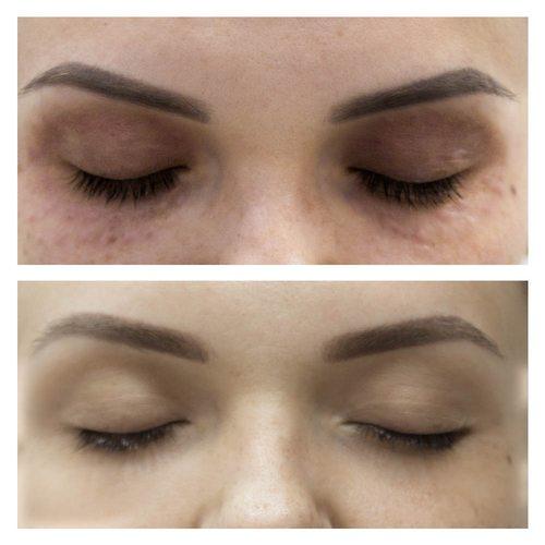 Мезотерапия вокруг глаз от Beauty Season