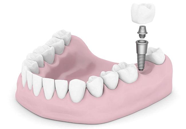 Имплантация зубов на Автозаводской