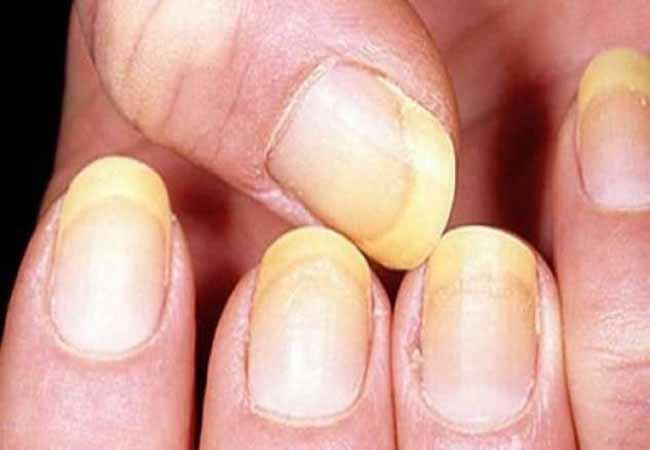 Псориаз ногтей: лечение