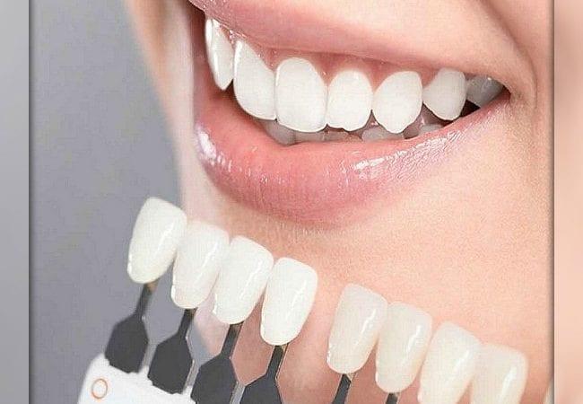 Уход за зубами. Реставрация, стоматология и коронки
